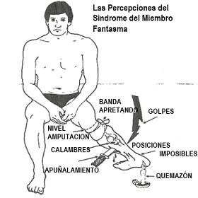 FISIOTERAPIA EN EL DOLOR DEL MIEMBRO FANTASMA
